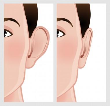 Ear Pinning, Otoplasty